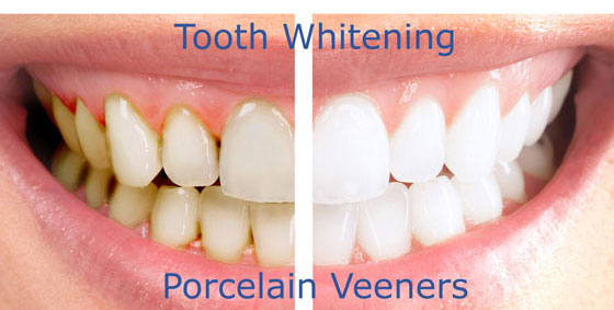 Tooth whitening and veneers Marbella
