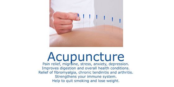 Acupuncture Marbella
