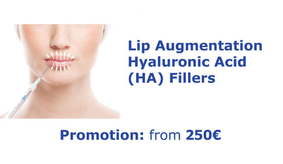 Lip augmentation - Lip fillers