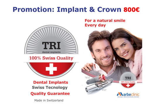 Dental Implants Marbella